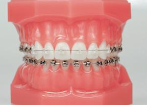 dental braces abroad