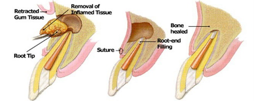 apical resection abroad