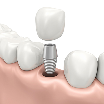 dental implant abroad