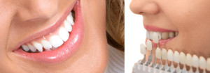 dental crown price abroad