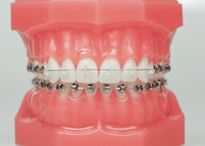 dental braces abroad
