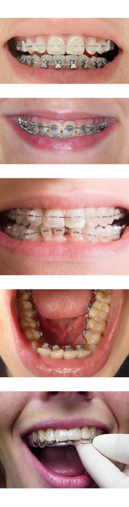 dental braces price abroad